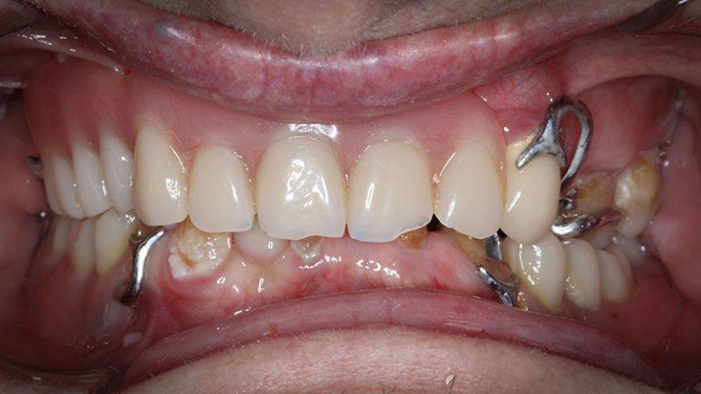 Nursing home dentist mobile dentist perth teeth extractions perth 16