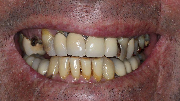 Nursing home dentist mobile dentist perth teeth extractions perth 19